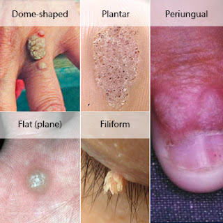 Types Of Warts And Treatment