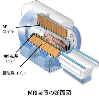 MRI装置の断面図