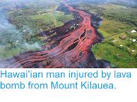 https://sciencythoughts.blogspot.com/2018/05/hawaiian-man-injured-by-lava-bomb-from.html
