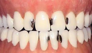 Cara Mencegah Karang Gigi Dengan Mudah Secara Alami Cermat Kita