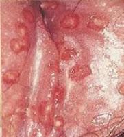 Image Obat vagina luka dan gatal seperti kena kutu air