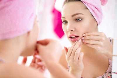 protect-yourself-from-acne-in-simple-steps