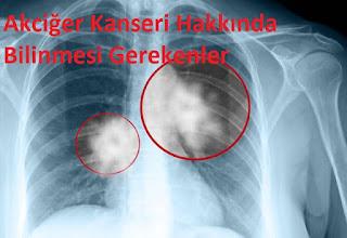 Akciğer Kanseri Hakkında Bilinmesi Gerekenler