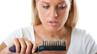 rambut rontok parah pada wanita