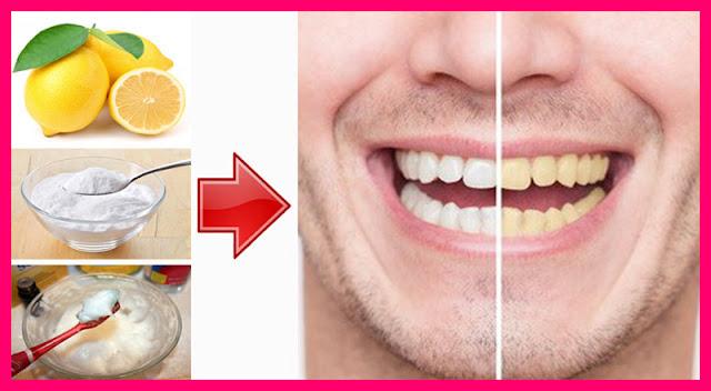 Bagi yang suka mengkonsumsi kopi maupn teh, apalagi perokok memiliki gigi putih itu seperti tantang berat dalam hidup. Agak lebay sih ungkapan begitu, namun begitulah fakta bagi mereka yang menginginkan gigi putih namun menggosok gigi dengan pasta gigi konvensional saja tidak cukup.  wonderfuldiy.com merilis, sebenarnya ada cara alami, murah dan mudah untuk memutihkan gigi. Dan ini cukup dilakukan seminggu sekali. Caranya, anda cukup menyediakan lemon dan baking soda. Lalu campurkan kedua bahan sampai membentuk pasta, kemudian gosokan pada gigi menggunakan sikat gigi. Jangan lupa berkumur menggunakan air bersih.
