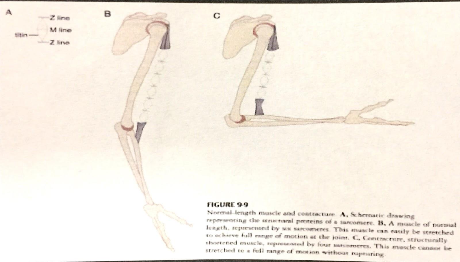 筋 紡錘 状