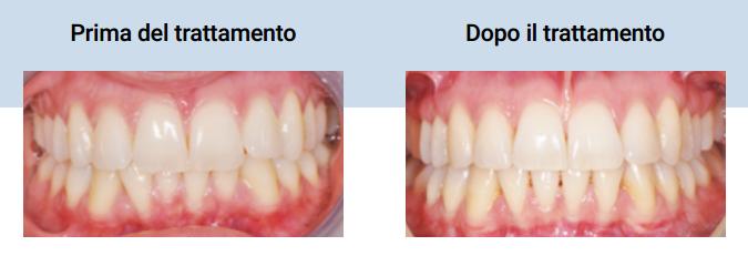 agenesia dente del giudizio disodontiasi