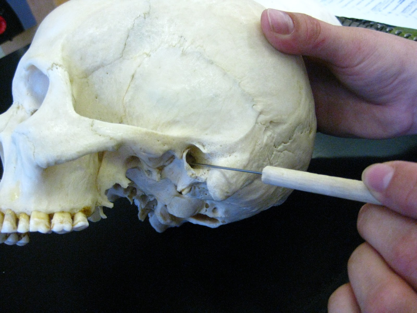 Boned: Human Skull - external auditory meatus (of temporal ...External Acoustic Meatus