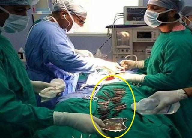 """دخل إلى المستشفى بحالة طارئة.. وما وجدوه في معدته أدهشهم! بعد عملية استغرقت 5 ساعات وجدوا في """"بطنه"""" ما لا يُصدق!!"""
