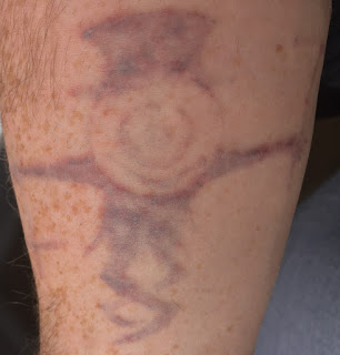 Tattoo 24 hours after picosure tattoo removal