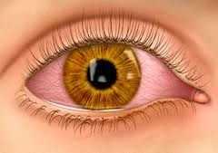 العين والرؤية (عيوب الرؤية ووسائل الإصلاح)