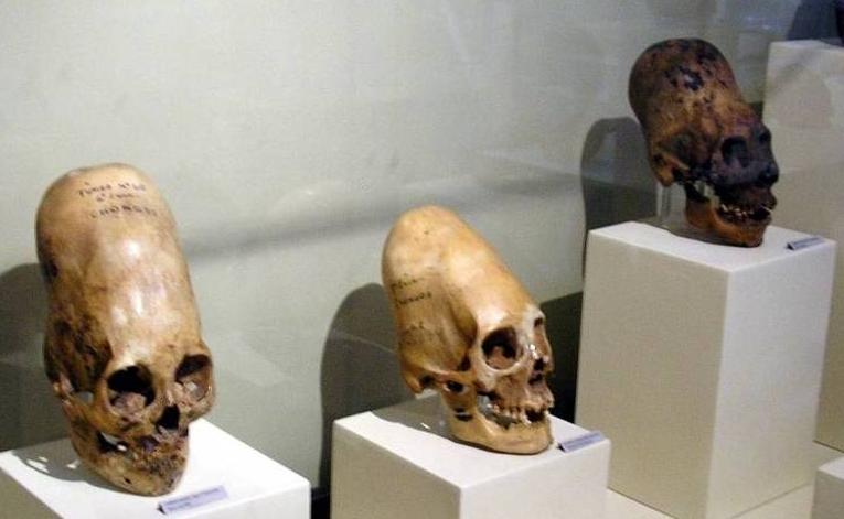 Geneticista Afirma Que Crânios Encontrados no Peru Não Têm DNA Humano