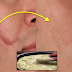 Naturally Remedies: Remove Your Scars Permanently By Putting This Cream On Top