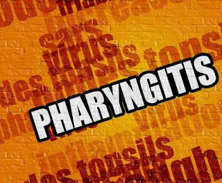 pharyngitis-www.healthnote25.com