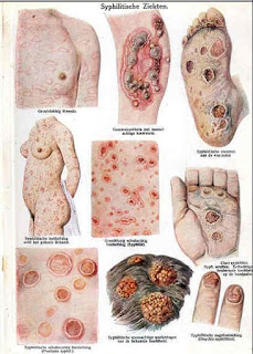 Syphilis_symptoms_sexually_transmitted_infections