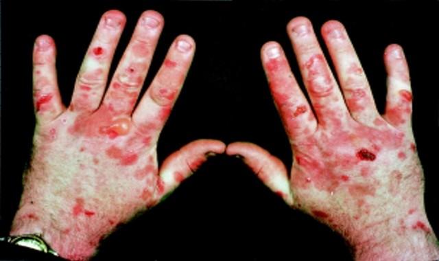 امراض نادرة الحدوث,امراض نادره ليس لها علاج,امراض خطيرة غير معروفة,اغرب الامراض الجلدية,امراض غير شائعة,امراض نادرة تصيب الجهاز العصبي,اسماء امراض,امراض غريبة,امراض,غريبة,أمراض غريبة,أمراض,اغرب 10,امراض عجيبة,امراض غريبة عجيبة,أغرب,غرائب وعجائب,الامراض الجلدية,الامراض النادرة,امراض لن تتوقعها,غريب,الامراض الاغرب في العالم,غرائب,متلازمة اليد الغريبة,عجائب وغرائب,نادرة,عجائب,عربية,حول العالم