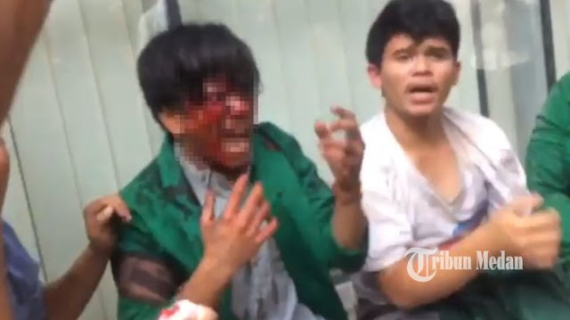 Video Wajah Mahasiswa Terluka, Darah pun Mengucur Lalu Teriak: Kenapa Polisi Mukul?