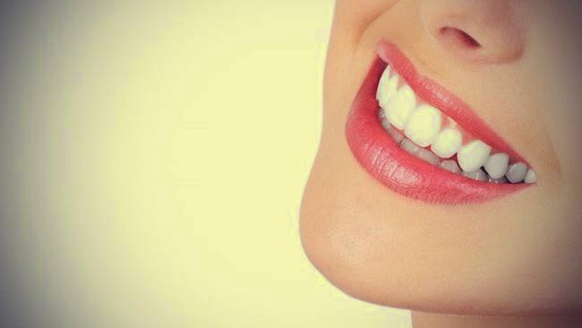 cara menghilankan plak dan kuning gigi
