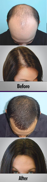 HAIR LOSS REMEDY MEN AND WOMEN