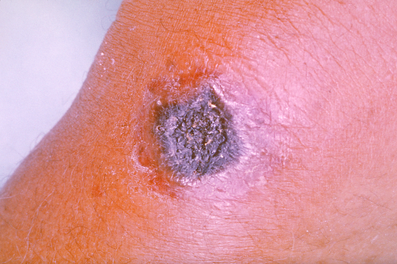 small resolution of  of the spores via open breaks or wounds in the skin following the handling or processing of infected animals if treated effectively cutaneous anthrax