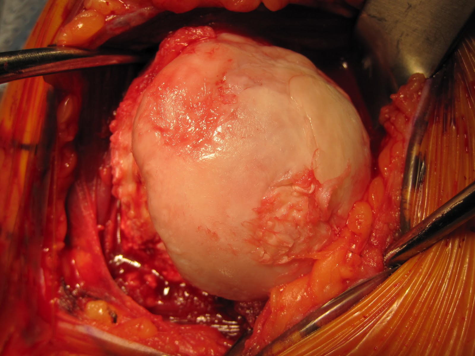Shoulder Arthritis / Rotator Cuff Tears: causes of ...