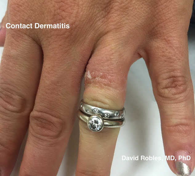 Atopic dermatitis aka eczema Know the basics David Robles MD