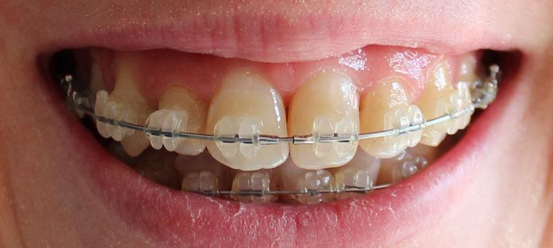 orthodontie adulte bouche en chantier j 10 mois et 1 2 apr s l 39 op ration de disjonction. Black Bedroom Furniture Sets. Home Design Ideas