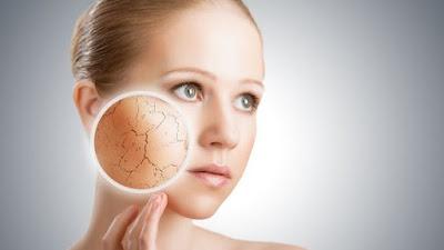 5 Cara Alami Mengatasi Kulit Wajah Kering