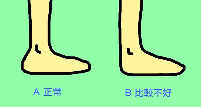 好痛痛 腳踝 足底筋膜 阿基里斯腱 緊繃
