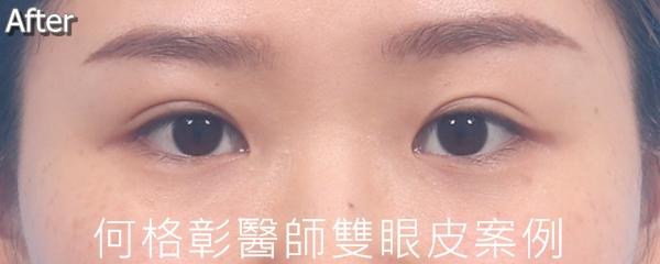 訂書針封閉式雙眼皮術後