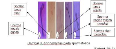 Abnormalitas pada spermatozoa