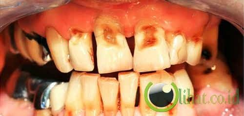 Sudden Onset Dental Collapse