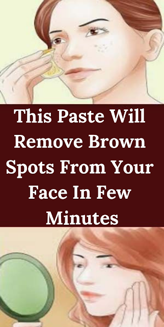 This Paste Will Remove Brown Spots From Your Face In Few Minutes