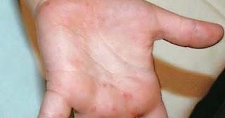 http://www.obatpenyakitgatal.com/2017/01/gatal-berbintik-di-telapak-tangan-dan.html