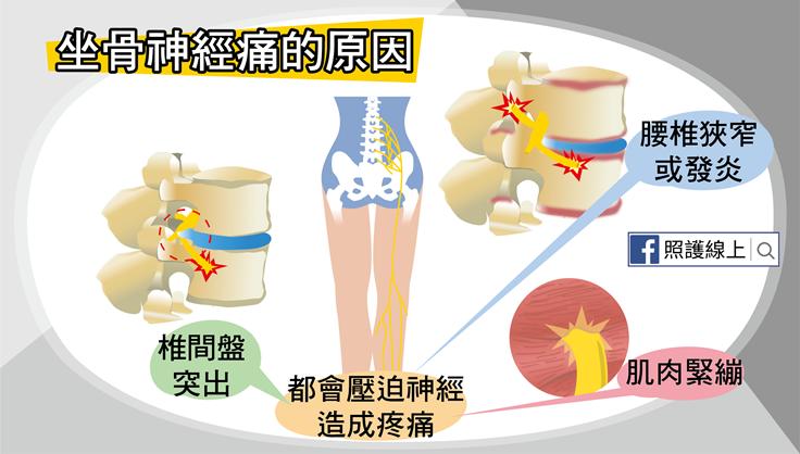 從屁股痛到腳 – 坐骨神經痛(懶人包) - 照護線上