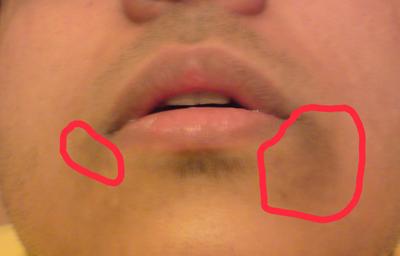 وصفة طبيعية للقضاء على الاسوداد حول الفم