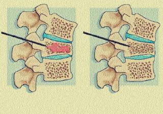 pareri medicale vertebroplastia ce este si cand e nevoie de ea