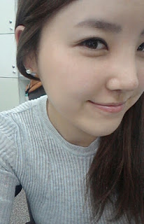 2 minggu sesudah operasi plastik hidung artis Korea