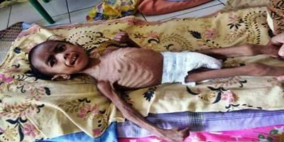 Bocah 4 Tahun di Aceh Utara, Gizi Buruk Akut