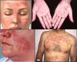 Cara Membunuh Virus Herpes Dengan Obat Herbal De Nature.