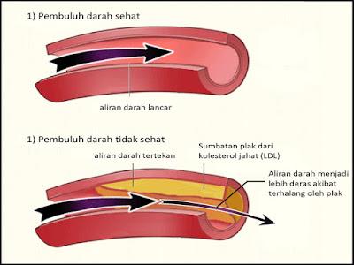 pengobatan kolesterol
