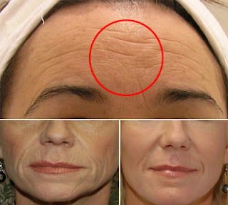 How to Remove Wrinkles At Home By Using This Natural Home Remedy