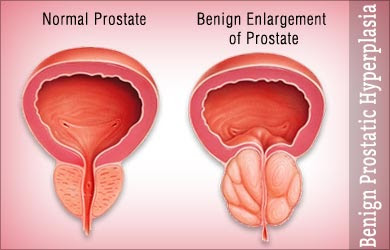http://www.urologistindia.com/diabetes-and-benign-enlarged-prostate/