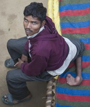 indian man born with 2 extra legs