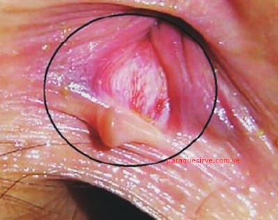 Qué es y cómo se trata la fisura anal.