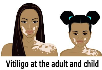 http://dermatologist-skin-clinic.com/skin/vitiligo/