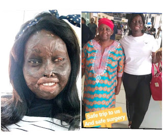 Acid burn survivor, chizzy frances