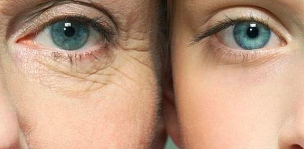 cara hilangkan kedut bawah mata, petua hilangkan kedut bawah mata, hilangkan kedut bawah mata dengan cepat, cara hilangkan lebam bawah mata