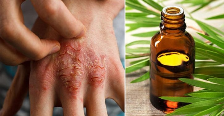 Oil That Fights Acne, Eczema And Psoriasis