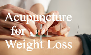 Weight Loss Acupuncture Therapy? Plus 5 Step Weight Loss Plan